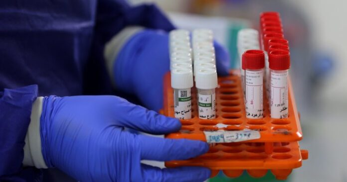 Ontario reports 864 new COVID-19 cases as daily testing increases  | Globalnews.ca